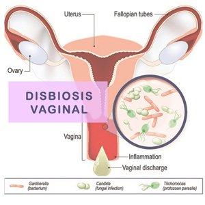 Disbiosis Vaginal Estudio